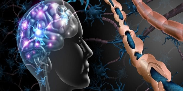 Multiple sclerosis nerve disorder and damaged myelin or MS autoimmune disease with healthy nerve with exposed fibre with scarrred cell sheath loss with 3D illustration elements.